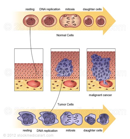 Cancer-cell-growth