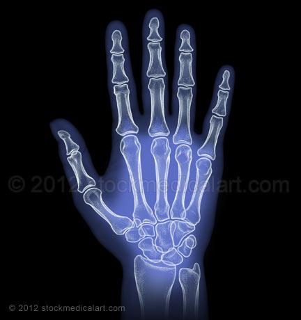 Hand-X-Ray