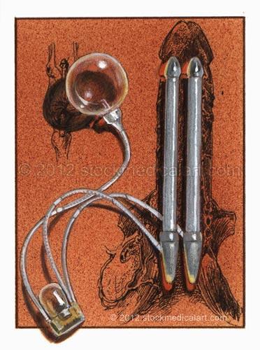 Penile-implant