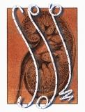 Kidney-with-catheters
