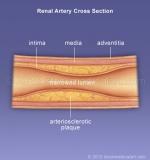 Renal-artery-atherosclerosis