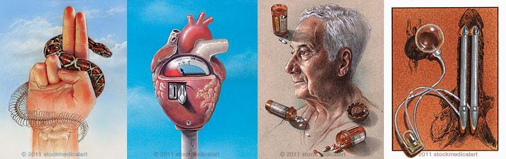Medical Conceptual